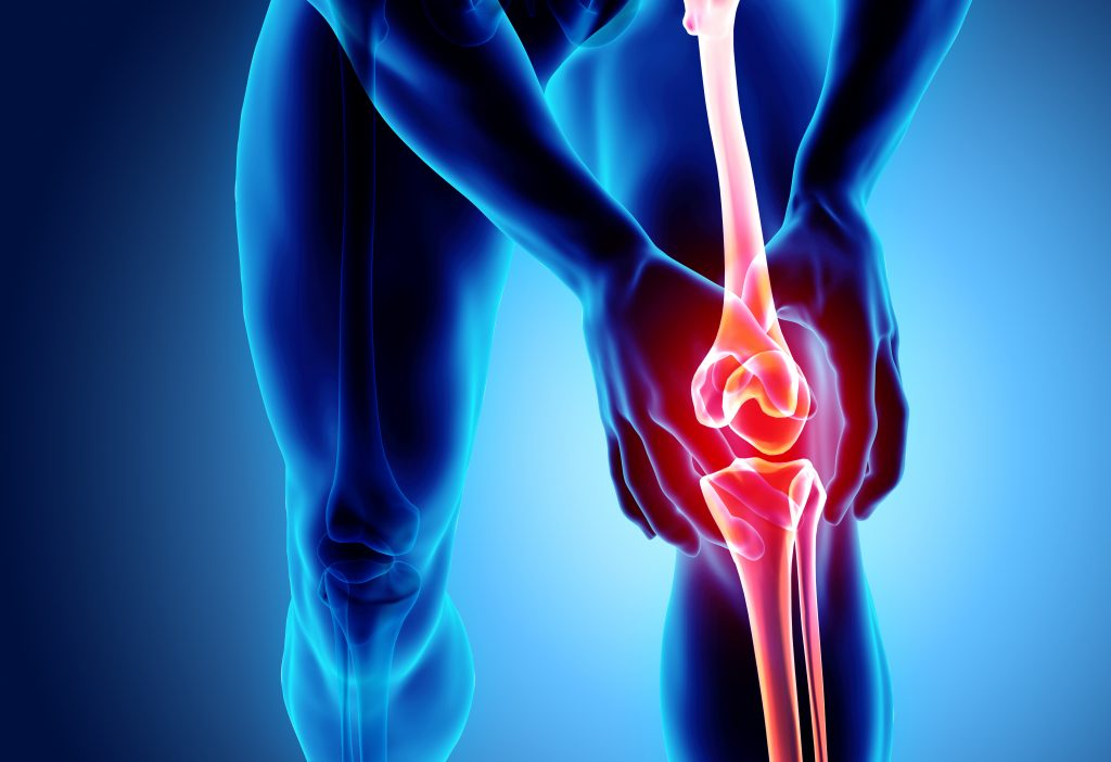 bone or joint sport injury